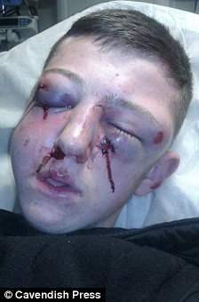 Second Unprovoked Asian Gang Attack On White Man Probed After He Is Beaten With A Bottle Daily