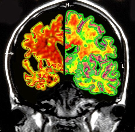 Decline: A diseased brain, left, beside a healthy one
