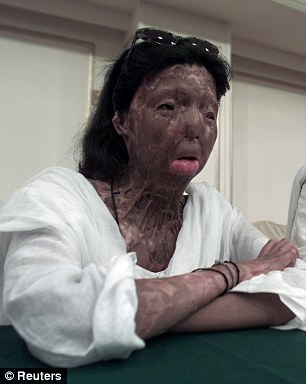 Life-changing: Fakhra Younus, pictured left before the horrific acid attack in May 2000, was left heavily facially disfigured after having acid thrown in her face