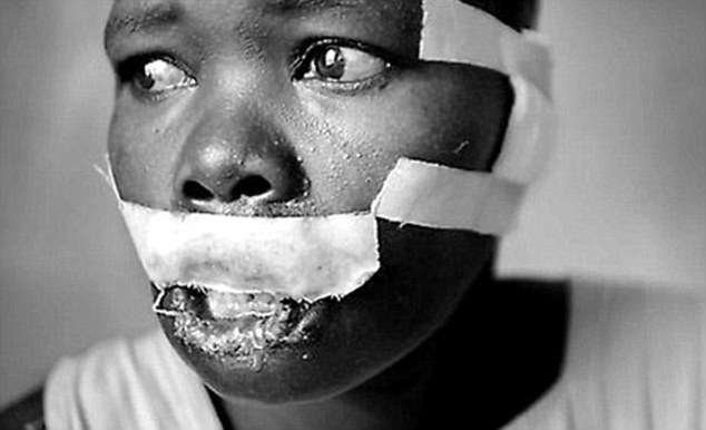 Scarred: Kony's LRA has ordered his young army to carry out acts of mutilation on the faces of other youngsters