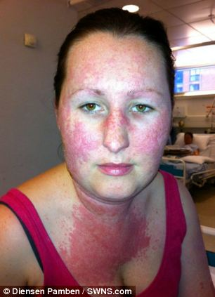 iPhone cover causes allergic reaction covering woman's face and neck ...