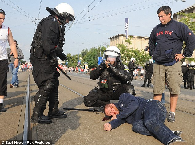 An injured Russian football fan lies on the ground in need of medical with police at his side