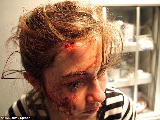 Injuries: Hollie C, a 24-year-old tourist, received 16 stitches to her head after she was hit with a flying bottle during a fight reportedly between hip hop artists Chris Brown and Drake in Manhattan