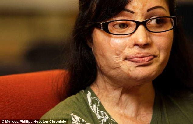 Barbarische: Julie Aftab Gesicht war entsetzlich entstellt, während des Angriffs und erfordert 31 Operationen