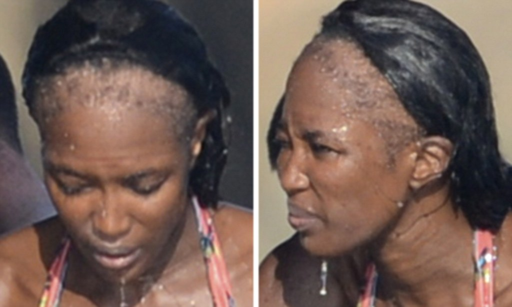Naomi Campbells Shocking Bald Patches After Years Of
