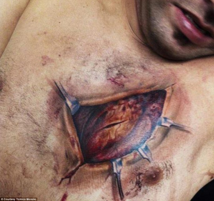 Matters of the heart: This tattoo, also by Yomico Moreno, shows tattooed clamps holding open a heart that was apparently sliced by the scalpel