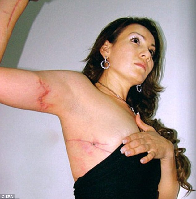 Sickening: Gorrostieta shows the wounds she sustained from the ambushers' gunfire and the subsequent car crash
