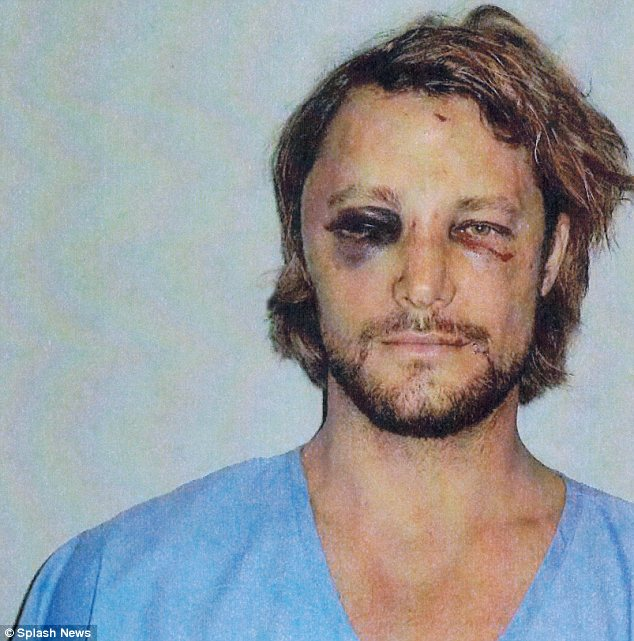Shocking: Photos of Gabriel Aubry's injuries following his fight with Olivier Martinez on Thanksgiving