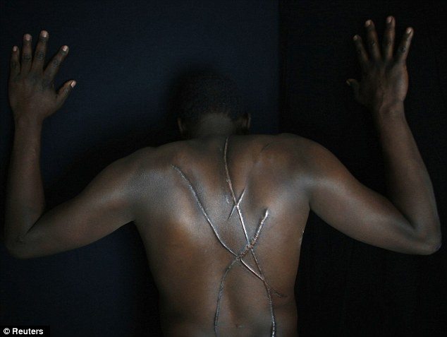 Horrific: Migrants living in Greece have become the biggest and most defenceless of victims of the country's economic crisis. Hassan Mekki, a 32-year-old Sudanese migrant, shows scars on his back following an attack against him