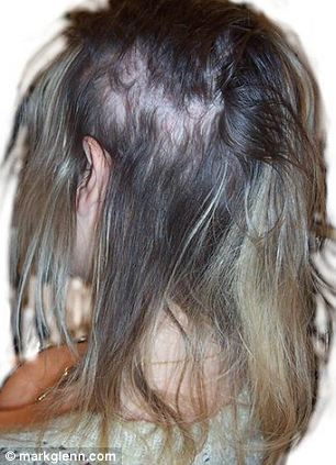dangers of hair extensions blinding headaches to bleeding scalps and permanent baldness daily