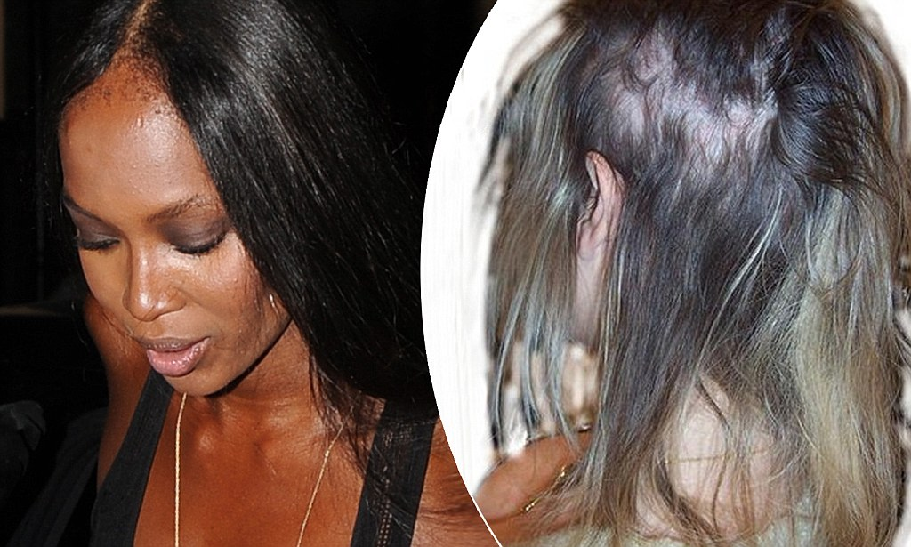 Dangers Of Hair Extensions Blinding Headaches To Bleeding