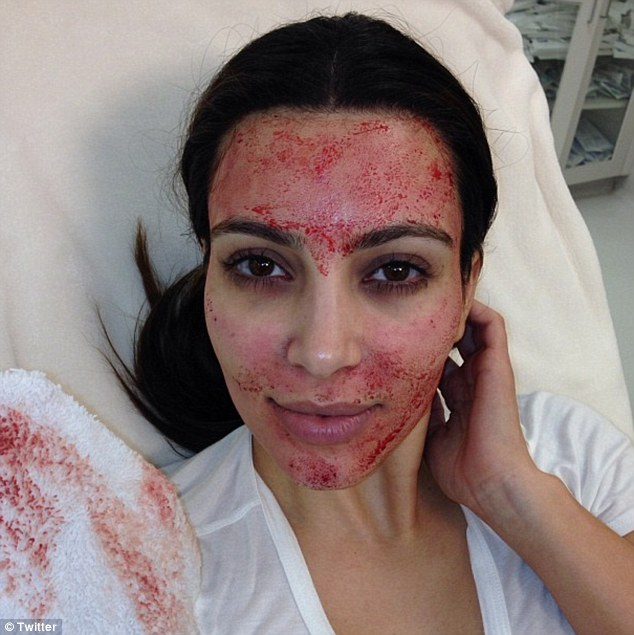All's good: Kim tweeted a picture mid procedure