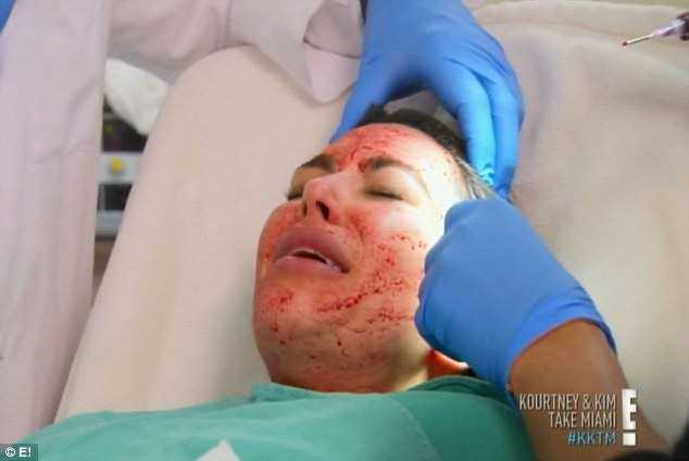 Not for the faint of heart: Kim Kardashian treats herself to a blood facial on the latest episode of her show Kourtney and Kim Take Miami