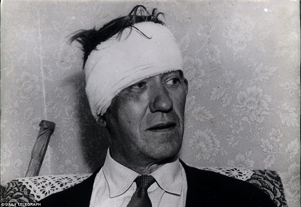 Injuries: Jack Mills, driver of the train which the gang targeted, after being beaten by the robbers