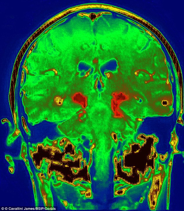 Devastating illness: MRI of Parkinson's Disease, a degenerative disorder of the central nervous system, which experts now say may be linked to exposure to food-borne chemical residue from Roundup