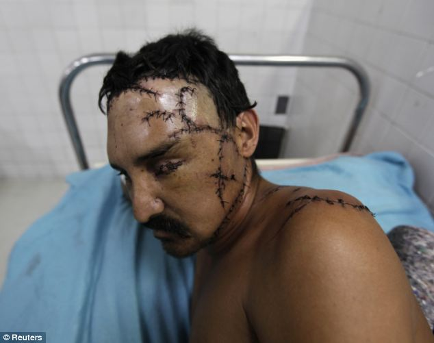 Horrific: A man sits in the emergency room of a local hospital after being treated for a gun shot wound and several cuts with a machete in San Pedro Sula