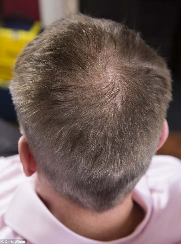 ANDREW PIERCE Was Horrified To Discover He Had Thinning