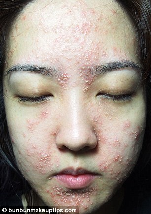 Singapore Beauty Blogger Bun Bun Suffers HORRIFIC Skin