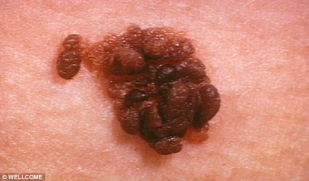 Could a new cream created from the sap of a common garden weed be the latest weapon in the fight against skin cancer?