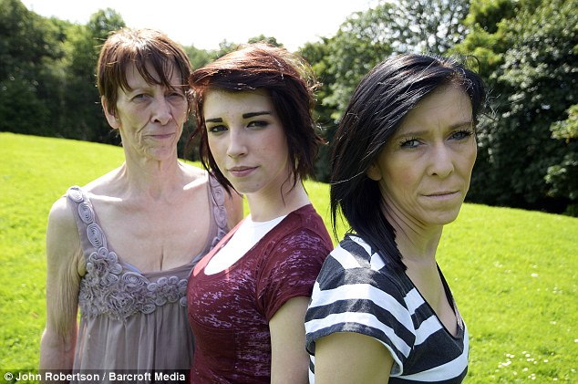 Genetic: Zara, pictured right pre-surgery, inherited the condition from her mother Tracey, left. But sister Chloe, centre, has not been affected