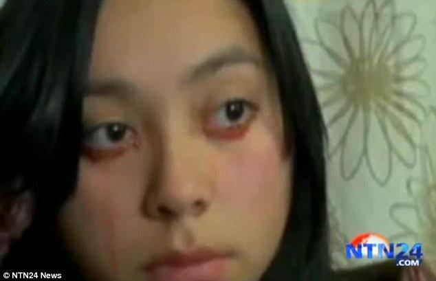 Yaritza Oliva recently started crying blood and has doctors baffled