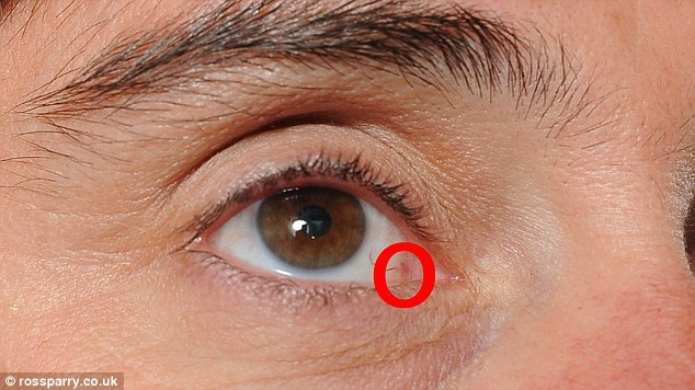 Scarring: A tiny line from the incision is visible on Joanne's eye (see encircled), but that is the only sign of the surgery