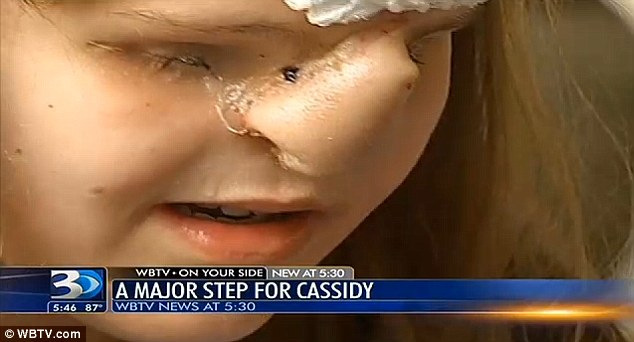 Slightly Tender: Cassidy Hooper described her boneless nose as slightly painful and described her excitement that the whole process is almost over