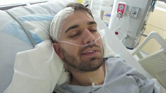 Avm Brain Surgery Recovery