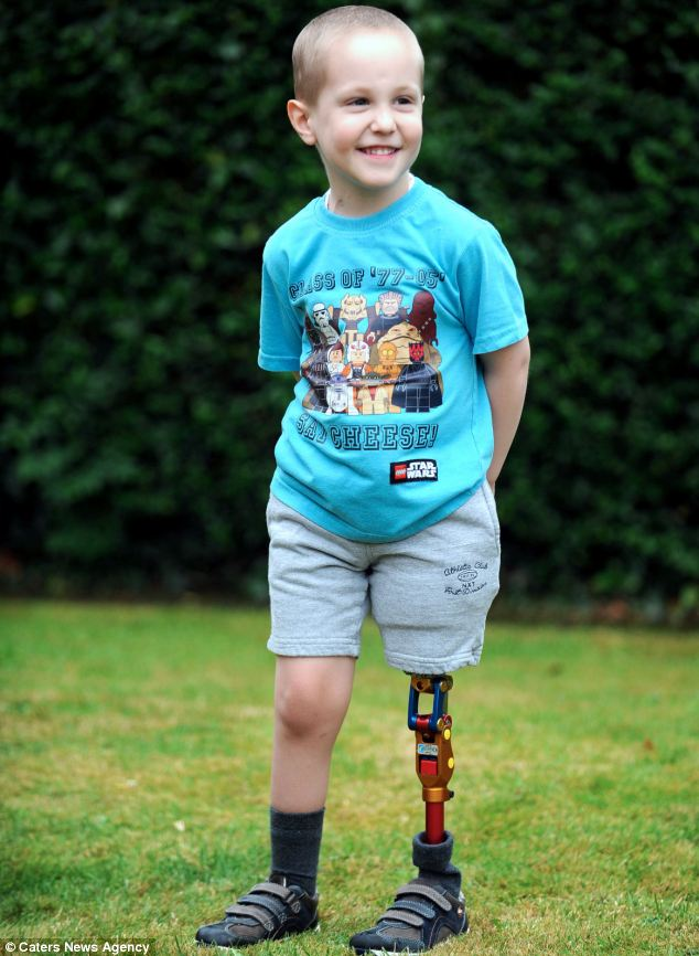 Boy Who Lost Leg To Cancer First Child In UK To Get Robot