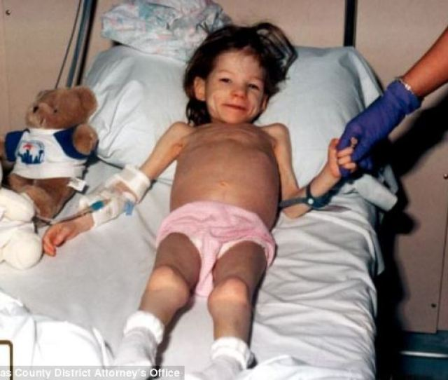 Tortured Lauren Who Was Eight When She Was Found In 2001 Weighed The