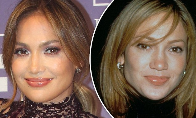 Beverly Dangelo Plastic Surgery And After