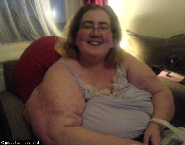 Naomi Benton baffled doctors for over a decade as she continued to pile on the pounds despite following an 800 calorie-a-day diet and undergoing gastric bypass surgery