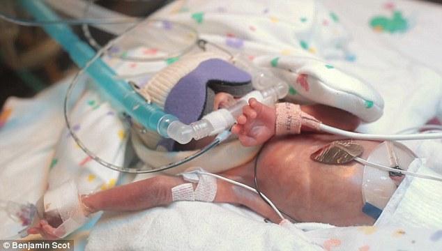 Μικρή Ward Miles πέρασε τις πρώτες 107 ημέρες της ζωής του στη ΜΕΝΝ με μια σειρά από μηχανές για να τον βοηθήσει να επιβιώσει