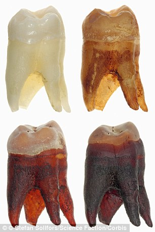 The phosphoric acid in cola drinks erodes away tooth enamel, and the coloring makes the root go dark brown