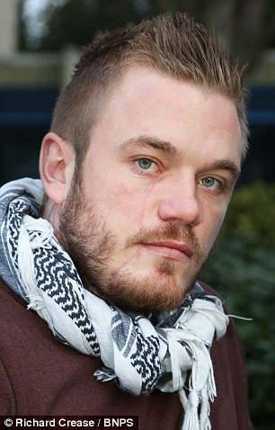 Knife attack: Ben Selby was left with a five inch gash to his face after the attack