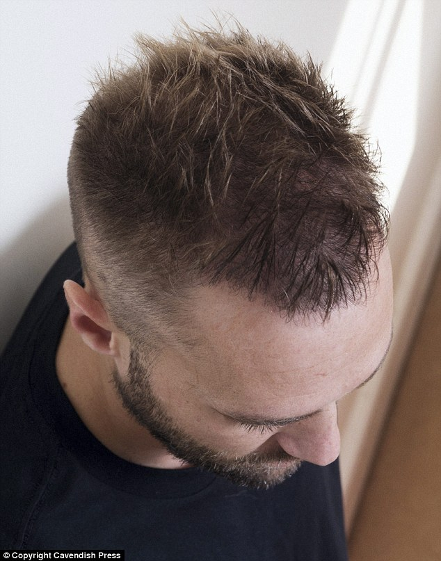 Calum Best Undergoes A SECOND 6000 Hair Transplant In