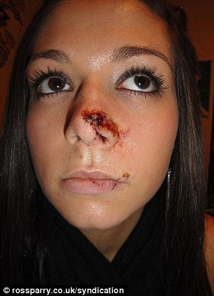 Beauty Queen Whose Nose Was Split In Half During Vicious
