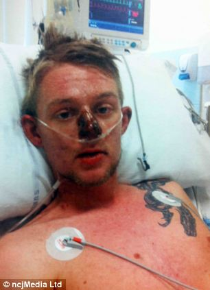 Father Is Left In Coma With His Skin Peeling Off After