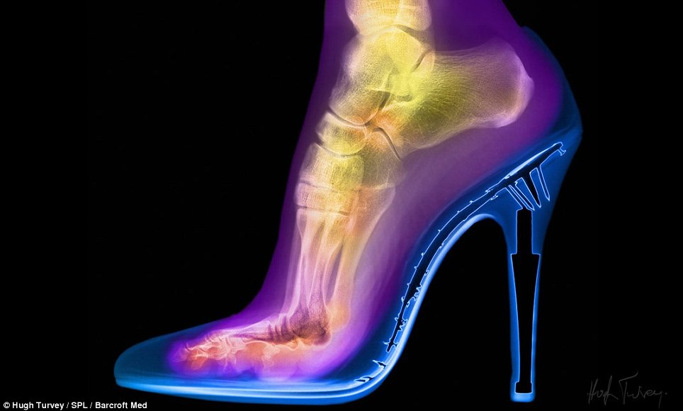 Dressed to impress: A foot supported by a stiletto heel is another one of the images on display at the Oxo Tower, on the banks of the Thames