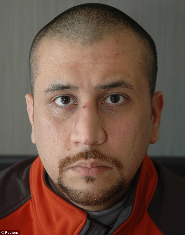 George Zimmerman Im Homeless And Suffering From Post