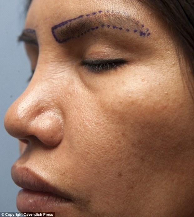 Elizabeth had the £4,000 eyelash transplant after damaging her eyelids using false lashes