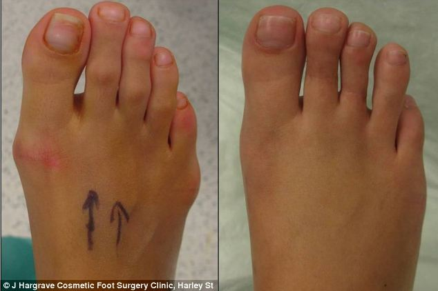 Heels Shortening Surgery After Toe