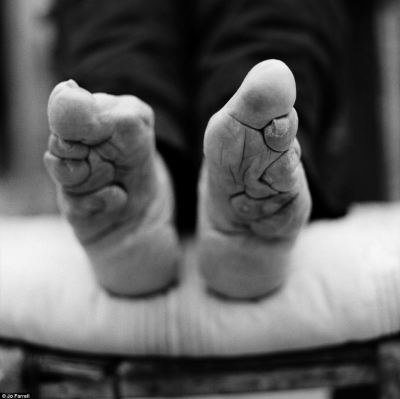 Practice: The process was started when women were aged between four and nine before their feet were fully developed and was often carried out during the winter months when the girls feet would be numb from the cold