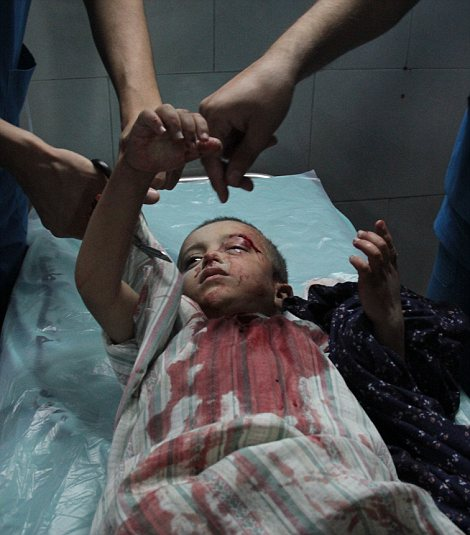 A wounded baby receives treatment at al-Shifa hospital in Gaza City