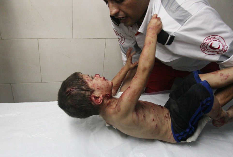 'I want my father': This photo of a desperate, injured Palestinian boy, released today, captures the tragic and bloody tension of the conflict in Gaza.