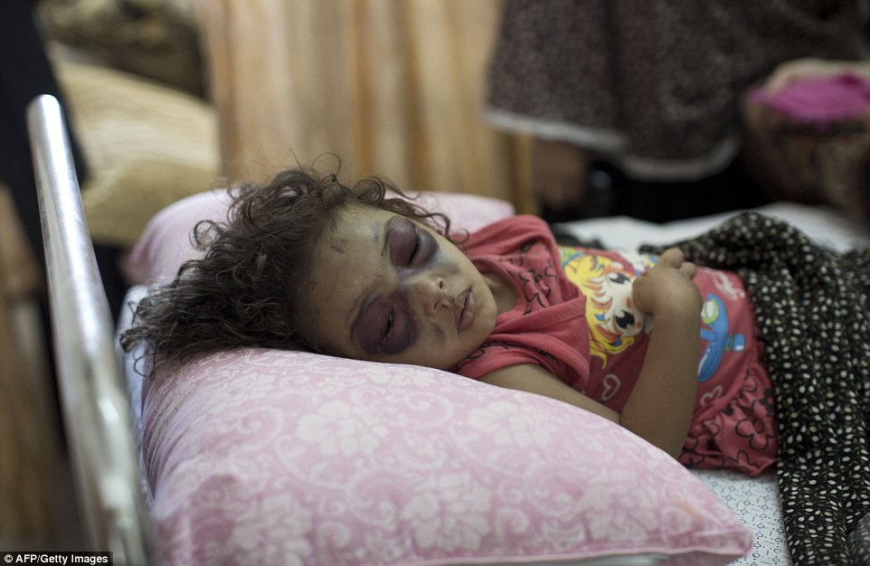 Two-year-old Palestinian girl Naama Abu al-Foul sleeps after undergoing treatment at Gaza City's Al-Shifa hospital following Israeli bombing next to her family's home in the battered city. Palestinian Foreign Minister Riyad al-Maliki told an emergency session of the UN Human Rights Council in Geneva that Israel was committing 'a crime against humanity' during its ongoing offensive against the Gaza Strip