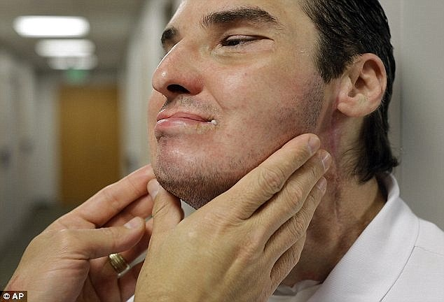 Dr Eduardo Rodriguez inspects Norris' skin. In the years since a shotgun accident blew half of Norris' face off, he faced cruelty from strangers, fought addiction and contemplated suicide