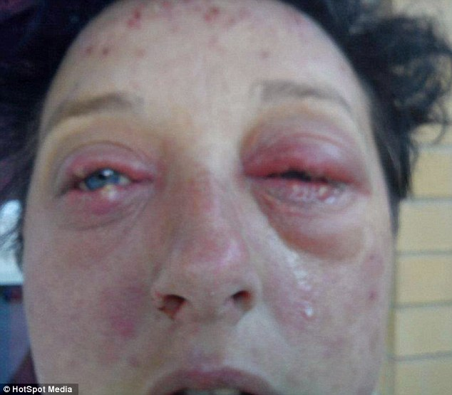 Within days, the skin on her face began to peel off and her eyes glazed over with a thick jelly substance