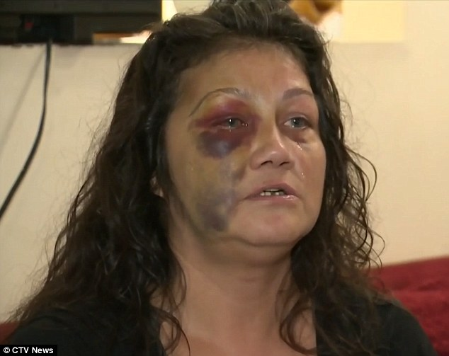 Assaulted:Lana Sinclair said she was more concerned for her eight-year-old son while a police officer allegedly assaulted her following reports of screaming coming from her home on Halloween night