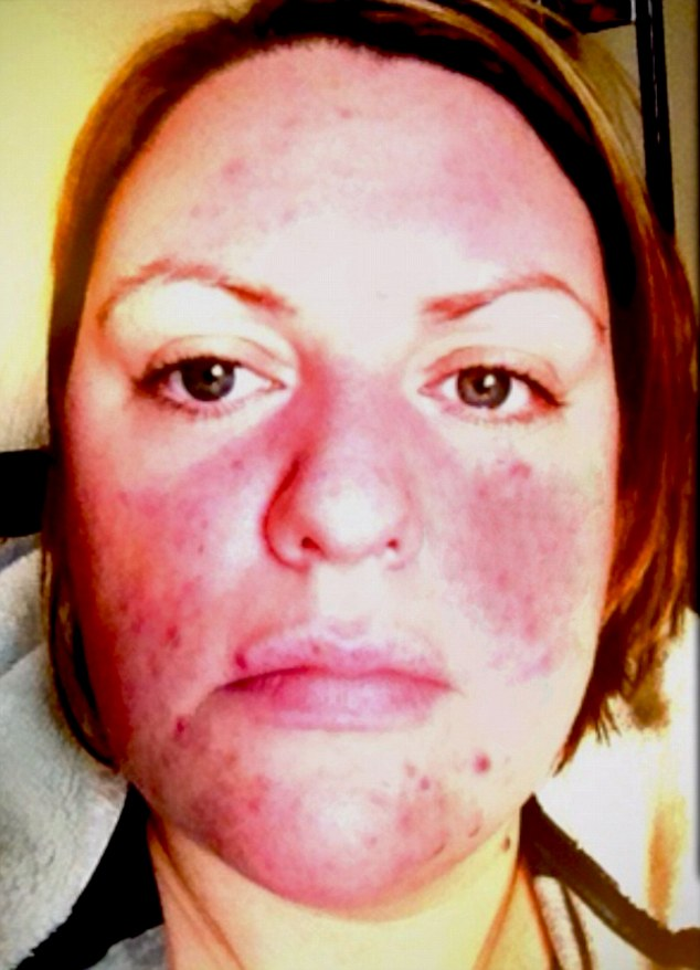 Deborah Duffie, 33, suffered an allergic reaction to hair dye which triggered severe rosacea, a condition which left her skin red, sore and blotchy. Just months before her wedding and after becoming distressed over her skin, she was recommended a cream containing capers which cleared her skin within weeks
